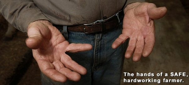 The hands of a SAFE, hardworking farmer.